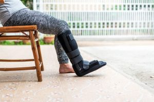 Injured person sitting on a stool with a cast on the right foot